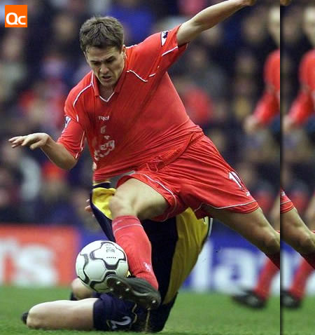 Michael Owen's Bulge
