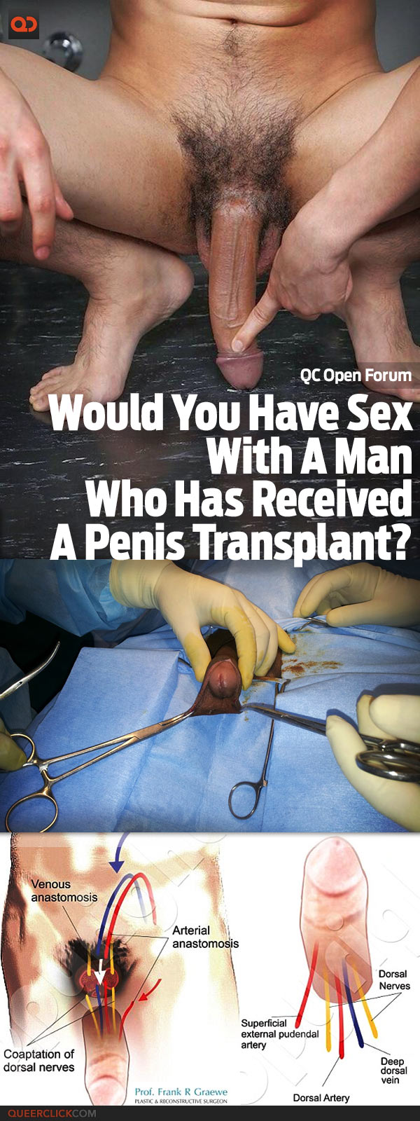 QC Open Forum: Would You Have Sex With A Man Who Has Received A Penis Transplant?