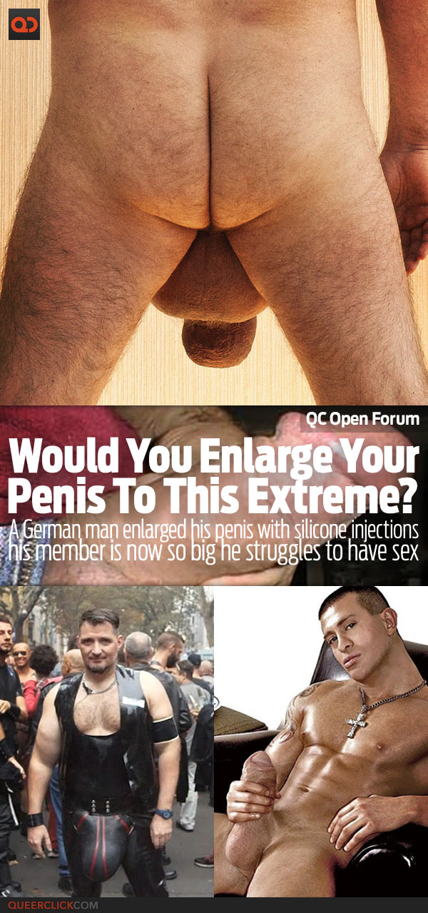 qc open forum would you enlarge your penis to this