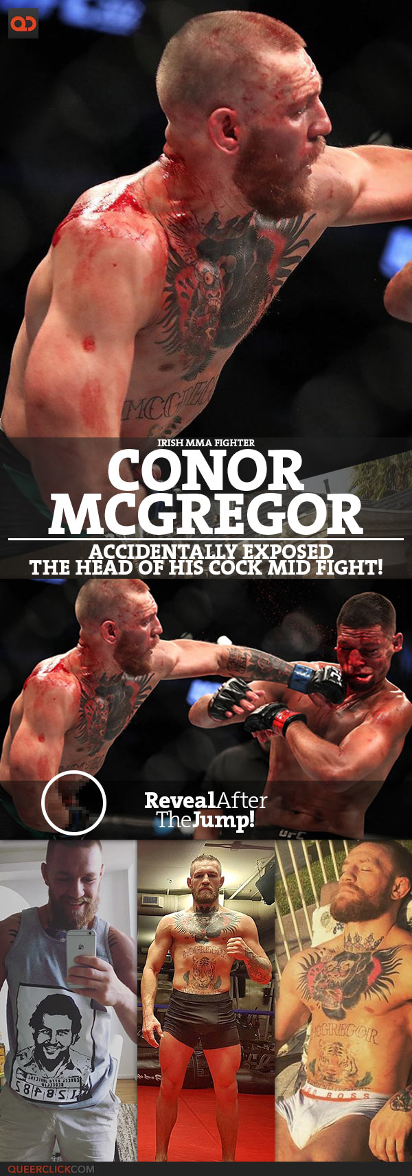 Conor McGregor Accidentally Exposed The Head Of His Cock Mid Fight!
