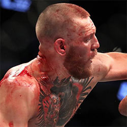 Did Conor McGregor Accidentally Expose The Head Of His Cock Mid Fight?