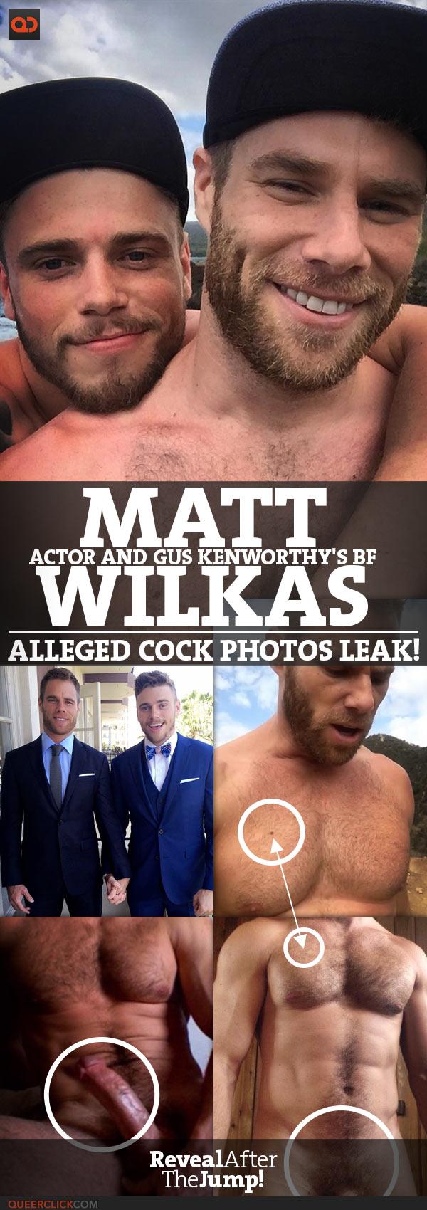Matt Wilkas, Actor And Gus Kenworthy's BF, Alleged Cock Photos Leak!
