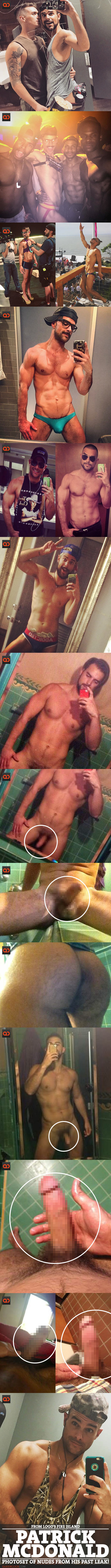 Patrick McDonald, From Logo's Fire Island, PhotoSet Of Nudes From His Past Leak!