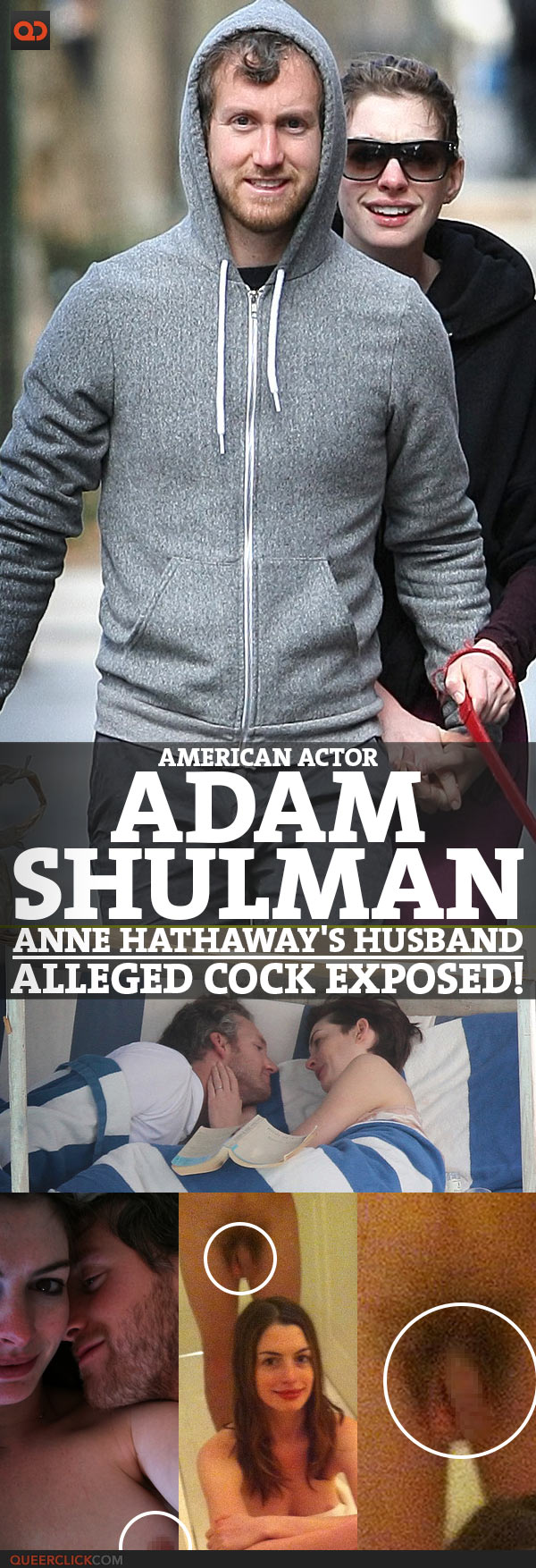 Adam Shulman, American Actor And Anne Hathaway's Husband, Alleged Cock Exposed!